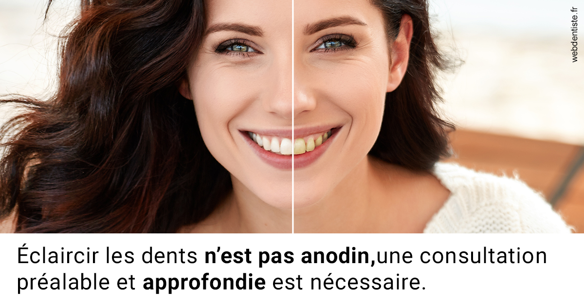 https://dr-madar-fabrice.chirurgiens-dentistes.fr/Le blanchiment 2