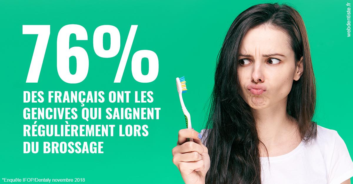 https://dr-madar-fabrice.chirurgiens-dentistes.fr/76% des Français 1