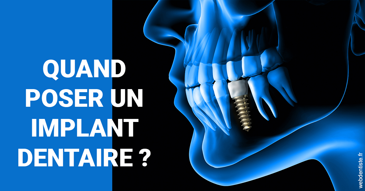 https://dr-madar-fabrice.chirurgiens-dentistes.fr/Les implants 1